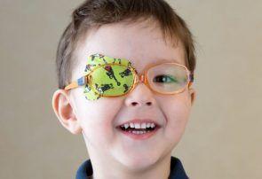 تنبلی چشم در کودکان و راهکارهای پیشگیری و درمان